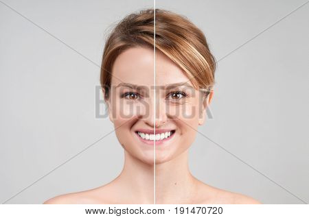 Concept of skin rejuvenation. Woman before and after cosmetic or plastic procedure anti-age therapy