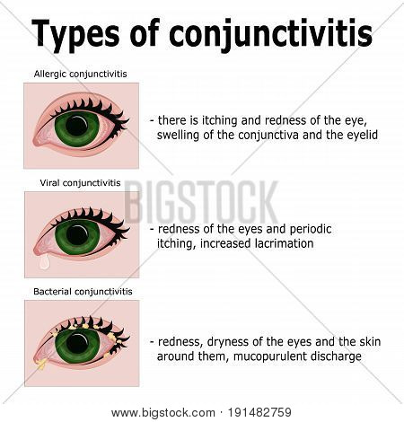 Three main types of conjunctivitis: allergic, viral and bacterial