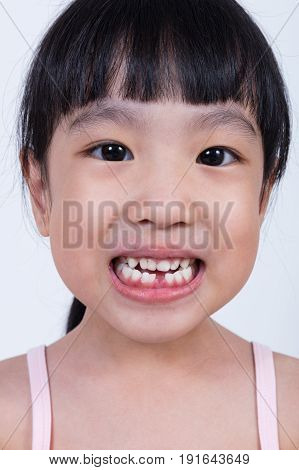 Asian Chinese Little Girl Showing Her Missing Tooth