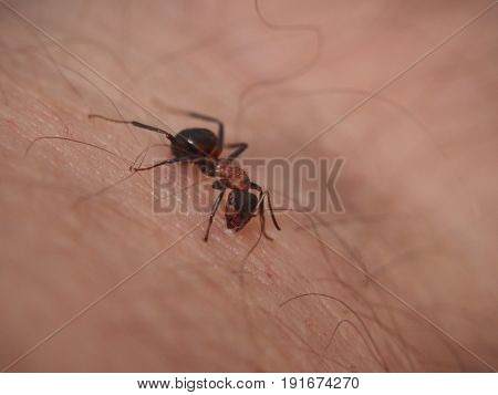 Forest Ant Sits On The Skin In Humans And Bites Him.