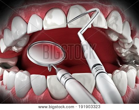 Professional dentist tools isolated on white background. 3D illustration.
