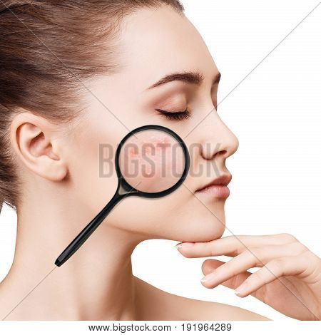 Young girl shows acne with magnifying glass. Isolated on white. Skincare concept.