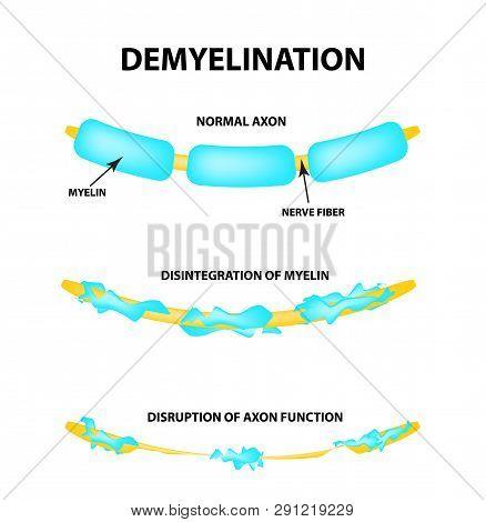 The Destruction Of The Myelin Sheath On The Axon. Damaged Myelin. Neuron Affected By Multiple Sclero