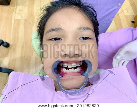 An Asian Girl Open Her Mouth With Mouth Gag And Show Removable Appliance With Anterior Spring Braces