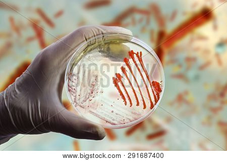 Colonies of different bacteria and mold fungi on Petri dish with nutrient agar on the bacterial background, photo and 3D illustration poster