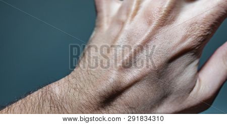 Close Up Shot Of A White Caucasian Man Left Hand With A Ganglion Cyst Lump Stuck Between The Dorsal