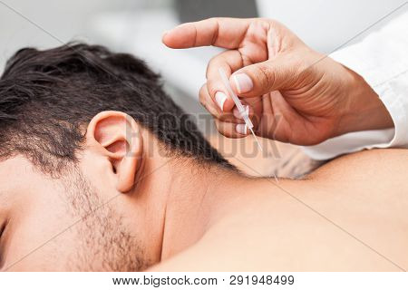 Doctor Performing Acupuncture On A Young Male Patient