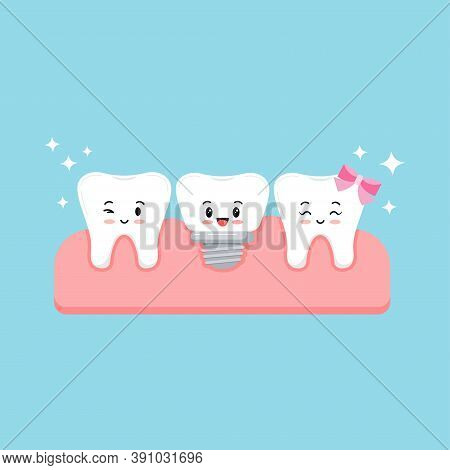 Cute Healthy Teeth Root And Dental Implant In Gum Isolated On Blue Background. Sweet And Funny Smili