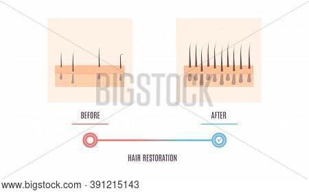Scalp Skin Cross Section Diagram Showing Hair Restoration Result
