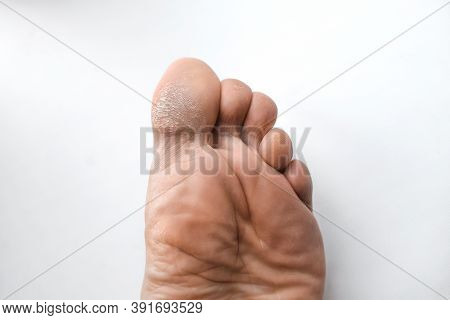 Male Foot With Corns And Calluses, On A White Background. Leg Close Up. Skin Lesions On The Toe. Cos