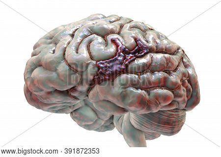 Hemorrhagic Stroke, 3d Illustration. Hemorrhage On The Brain Surface, Bleeding From A Brain Blood Ve