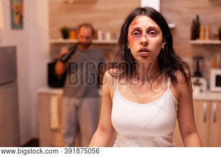 Vulnerable Woman After Being Beaten And Traumatised By Violent Drunk Husband. Violent Aggressive Man