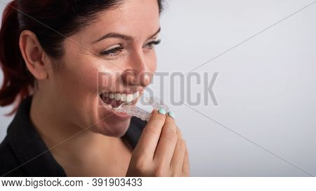 Business Woman Puts On Transparent Retainers To Straighten Teeth