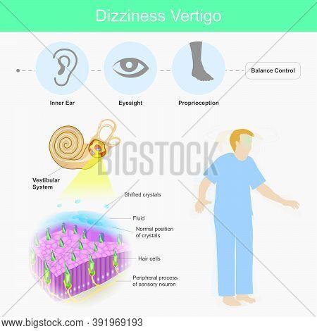 Dizziness Vertigo. Illustration Explain Dizziness Vertigo By Cause Of Crystals Can Float Into The Wr