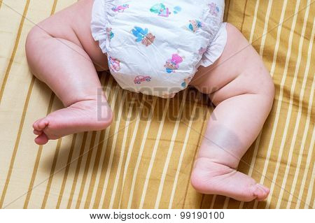 Birthmark On Asian Baby Girl Legs