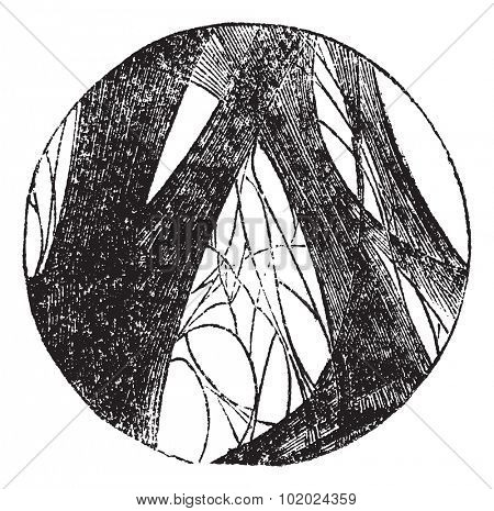 Coagulated fibrin, vintage engraving. Old engraved illustration of Coagulated fibrin. Trousset encyclopedia (1886 - 1891).