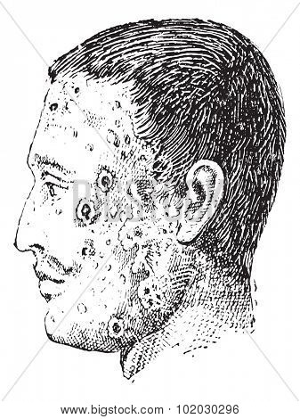 Old engraved illustration of human face infected with impetigo isolated on a white background. Dictionary of words and things - Larive and Fleury - 1895