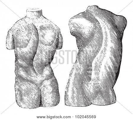 Cast of two varieties of scoliosis, vintage engraved illustration. Usual Medicine Dictionary by Dr Labarthe - 1885.