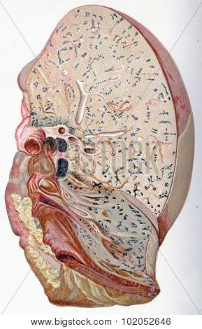 Lung, croupous pneumonia, vintage engraved illustration.