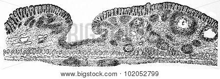 Tubercular ulcer, vintage engraved illustration.
