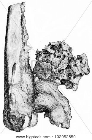Osteophytes on the popliteal aspect of the lower end of the femur, vintage engraved illustration.