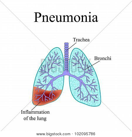 Pneumonia. The anatomical structure of the human lung. Vector illustration on isolated background