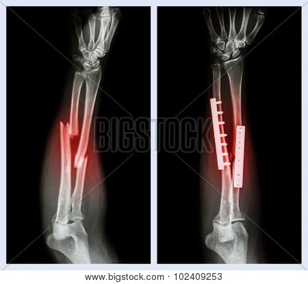 Fracture Both Bone Of Forearm. It Was Operated And Internal Fixed With Plate And Screw