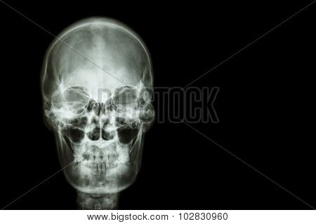 Film X-ray Skull Of Human And Blank Area At Right Side