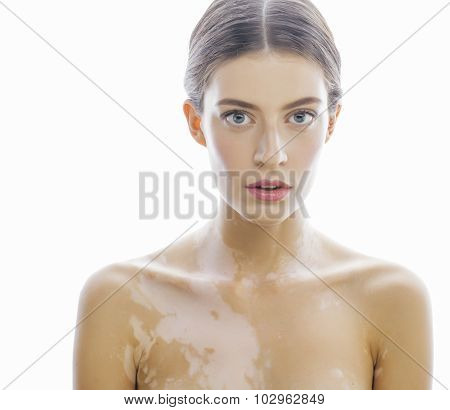 beautiful young brunette woman with vitiligo disease close up isolated