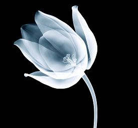 Xray Image Of A Tulip Flower Isolated On Black