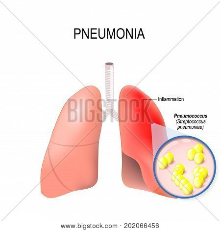 Pneumonia. Normal and inflammatory condition of the lung. This pneumonia is caused by infection with bacteria Streptococcus pneumoniae (pneumococcus)