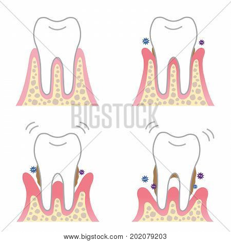 periodontal disease. four stages of gum disease symptoms