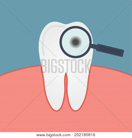 Decay tooth. Caries. Gum mouth magnifying glass enamel disease. The microbe under a microscope. Diagnostics dentist. Vector illustration.