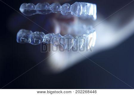 Dental Bracket Aligner Sytraightener