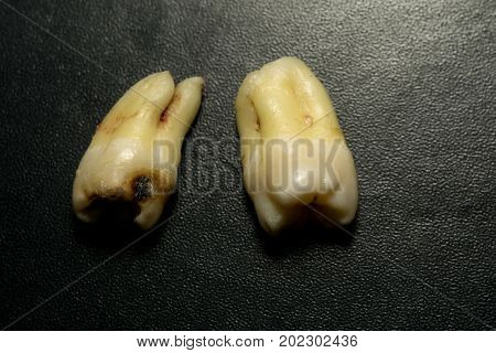 Tooth After Extraction