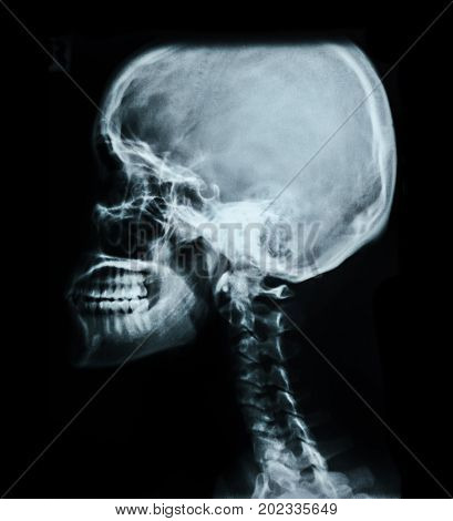 Human skull X-ray image isolated on black (skull head xray)