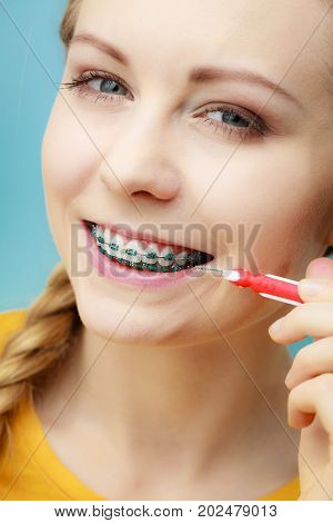 Dentist and orthodontist concept. Young woman with blue braces cleaning and brushing teeth using little toothbrush interdental brush