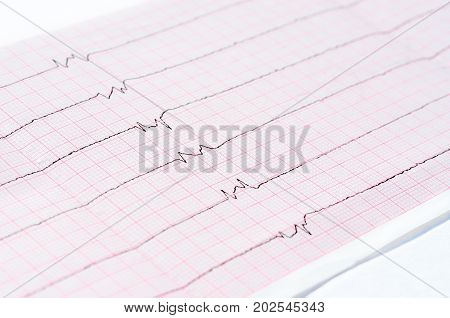 Resuscitation and intensive care. ECG with single ventricular complexes and ventricular asystole (
