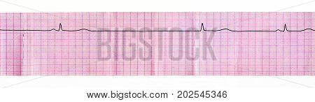 ECG tape with stop of sinus node (