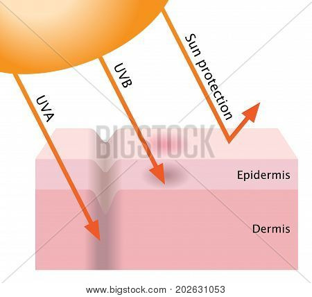 infographic skin illustration. UVA and UVB penetration into the human skin. sunscreen protect the skin from radiation.
