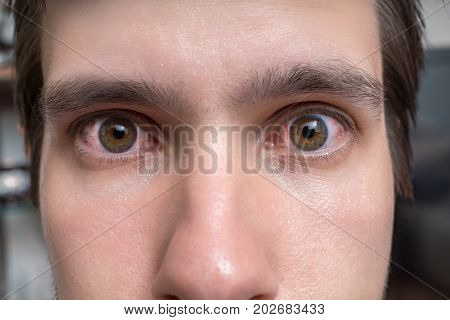 Conjunctivitis Or Irritation Of Sensitive Eyes. Close-up View On