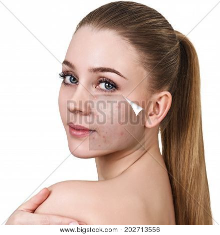 Layer with acne unstick from good healthy skin of young woman.