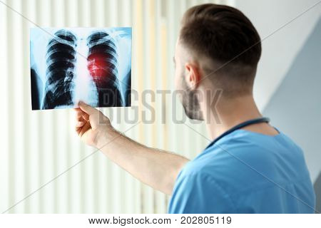 Doctor with x-ray image at hospital. Lung cancer concept