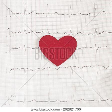 EKG graph paper, Electrocardiogram - Medical concept