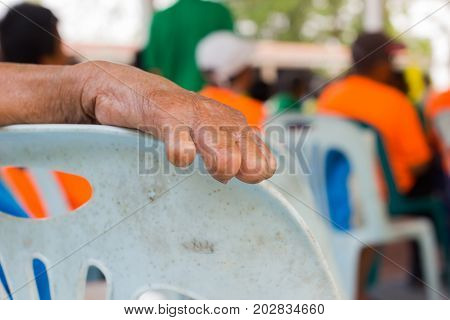 closeup hand of old asian woman suffering from leprosy amputated hand