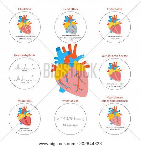 Cartoon Heart Disease Infographic Card or Poster Cardiovascular System Concept of Diagnostics and Health Care Flat Design Style . Vector illustration Of Heart Diseases