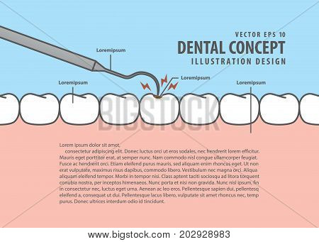Layout Decay Tooth Check Up (caries) Cartoon Style For Info Or Book Illustration Vector. Dental Conc