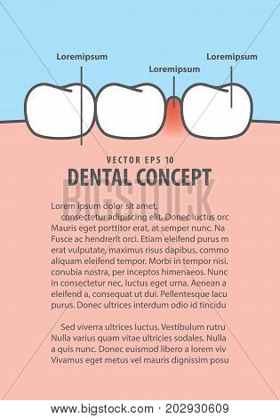 Layout Swollen Inflammation Gums With Teeth Frame Cartoon Style For Info Or Book Illustration Vector