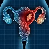 Uterus cancer and endometrial malignant tumor as a uterine medical concept as dangerous growing cells in a female body attacking the reproductive system as a symbol of cervical disease treatment diagnosis and symptoms with 3D illustration elements. poster