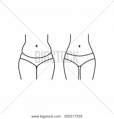 Female Body Before And After, Fat And Slim. Woman Body, Thighs And Tummy Weigh Loss Vector Icon. Thi